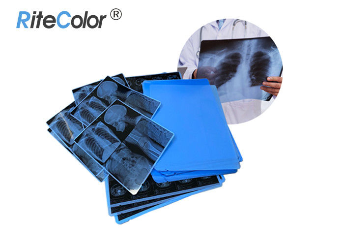 Inkjet Laser Printing X Ray Sheet Film Medical Dry Imaging Film 210 Micron Thickness